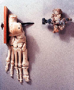 The Crucified Man Bone